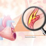Khám tim mạch bệnh hẹp mạch vành là gì, quy trình ra sao?