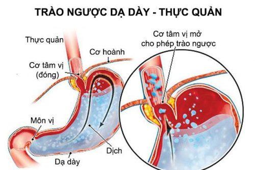 Trào ngược dạ dày thực quản có nguy hiểm thực sự vì dễ gây ra nhiều biến chứng nghiêm trọng