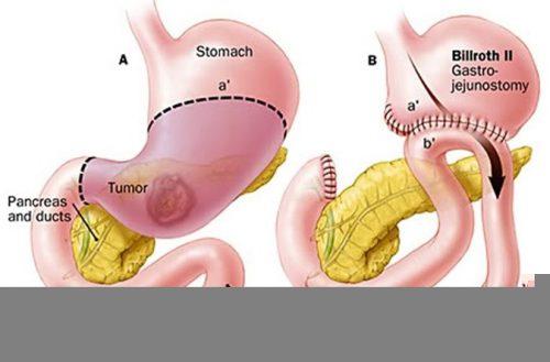 Hiện có 2 phương pháp điều trị là mổ hở và mổ nội soi cắt một phần hoặc toàn bộ dạ dày (tùy vào tình trạng bệnh của mỗi người)