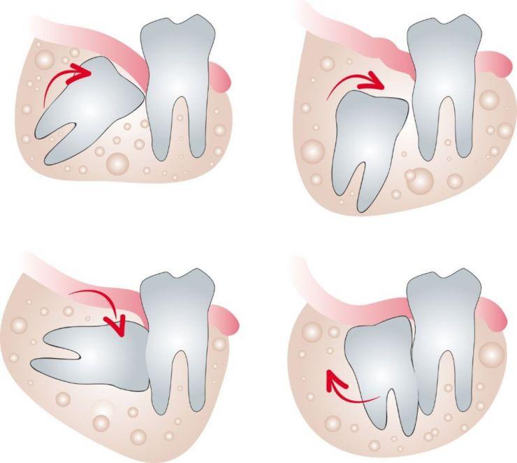 Khi nào cần nhổ răng khôn? Răng khôn mọc lệch, mọc ngang, mọc ngầm đều cần nhổ bỏ để tránh những biến chứng nguy hiểm