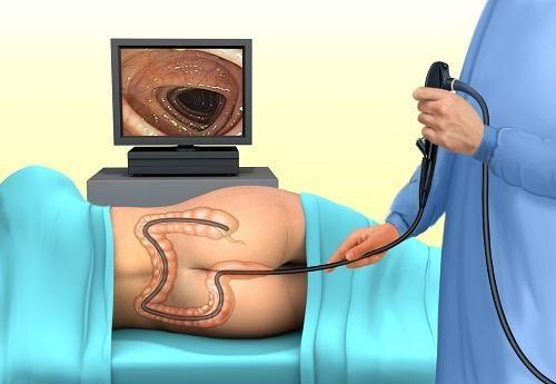 Nội soi đại tràng là một thủ thuật thăm khám trực tiếp toàn bộ đại tràng thông qua một ống nội soi mềm được đưa qua hậu môn.