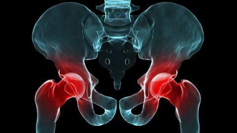 Giải đáp thắc mắc khớp háng bị đau do đâu và cách khắc phục