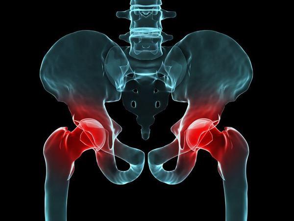 Khớp háng bị đau có thể do mắc viêm khớp háng