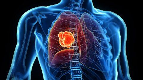 Làm sao để điều trị ung thư phổi tế bào nhỏ?
