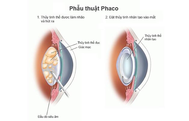 Phần lớn, người bệnh đục thuỷ tinh thể đều được bác sĩ khuyên là thực hiện phẫu thuật bằng phương pháp Phaco (Phacoemulsification).
