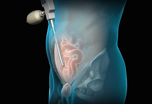 Khi bị thoát vị bẹn thì phẫu thuật bằng phương pháp nội soi được nhiều người lựa chọn.
