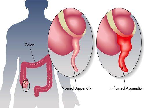 Viêm ruột thừa là bệnh phổ biến có thể gặp phải ở mọi đối tượng, lứa tuổi