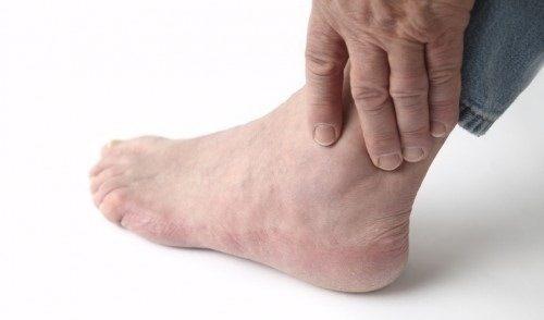 Khắc phục mỏi khớp cổ chân