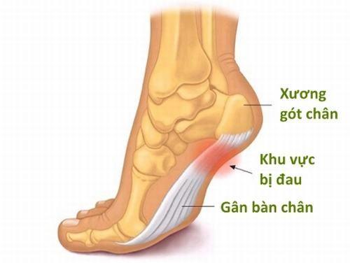 Một số vị trí viêm cơ chân thường gặp