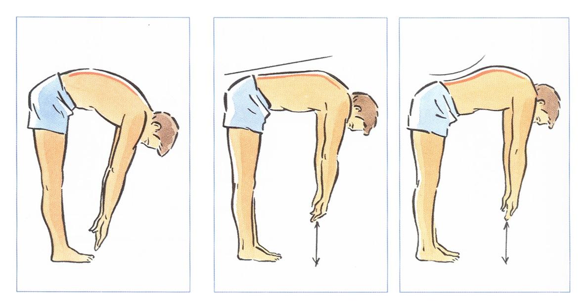 Nghiệm pháp Lasègue trong chẩn đoán hội chứng Thắt Lưng - Hông