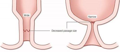 40% người bệnh sau mỗ trĩ phải đối mặt với chứng hẹp hậu môn