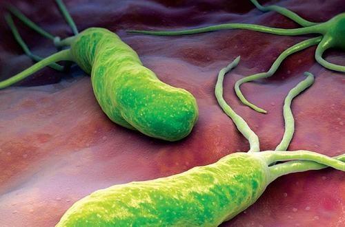 Vi khuẩn HP được cho là nguyên nhân gây loét đường tiêu hóa