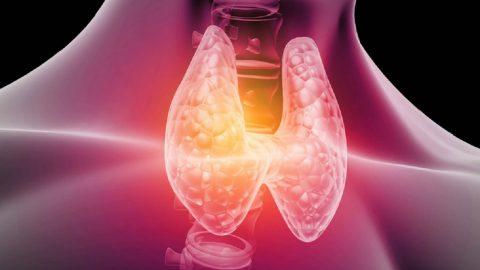 Nguyên nhân gây u nang tuyến giáp là gì?