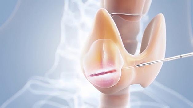 Tìm hiểu nguyên nhân gây u nang tuyến giáp