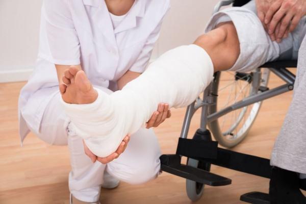 Nẹp xương và bó bột là một trong những phương pháp được áp dụng trong điều trị gãy xương mác