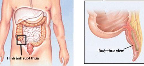 Viêm ruột thừa là tình trạng sưng và nhiễm trùng của ruột thừa.