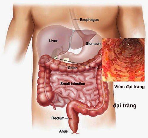 Viêm đại tràng là bệnh lý tiêu hóa thường gặp do nhiều nguyên nhân khác nhau gây ra