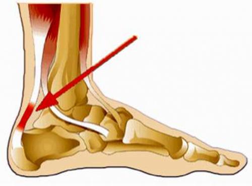 Viêm gân gót chân là tình trạng viêm điểm bám tận của gân gót chân gây ảnh hưởng lớn đến việc đi lại.