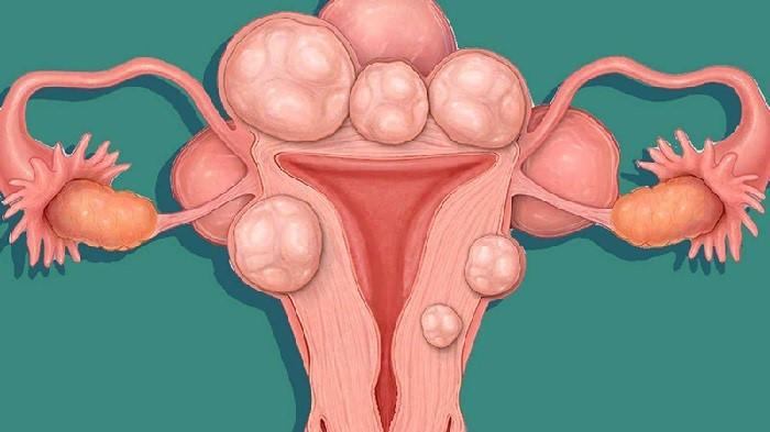 Nhân xơ tử cung là những khối u xơ có kích thước nhỏ hơn 30mm