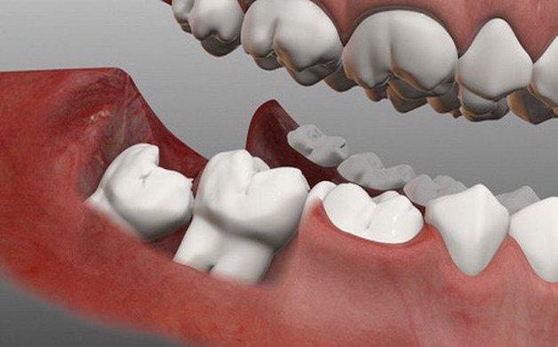 Một số biến chứng không mong muốn sau khi nhổ răng khôn cũng là nguyên nhân gây ra những cơn đau nhức dai dằng.