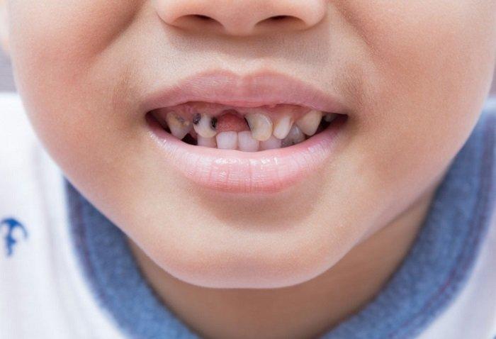 Khi bé bị sâu răng sữa quá nhiều không thể trám răng, sâu cụt tới chân răng thì cần tới nha sĩ để nhổ bỏ hoàn toàn