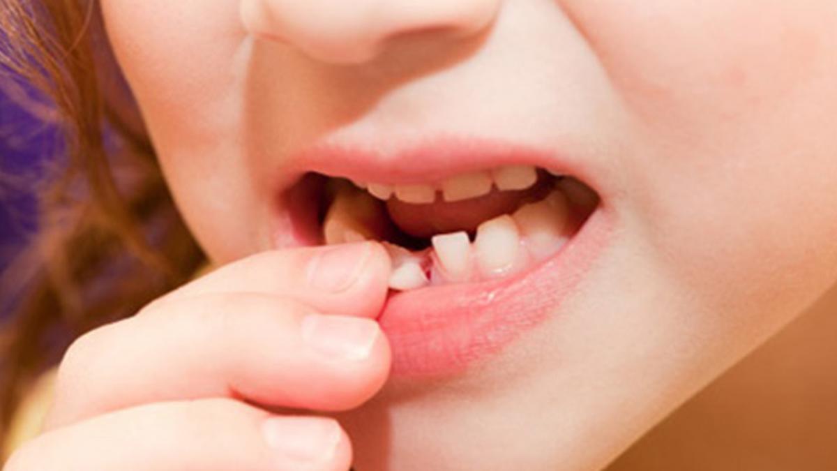 Nhổ răng sữa cho bé đúng thời điểm thay răng sữa sẽ giúp răng vĩnh viễn mọc đúng vị trí