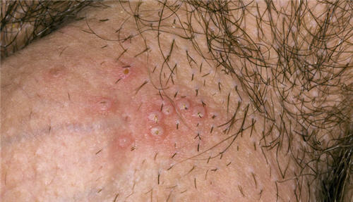 Những bệnh mọc mụn ở vùng kín nam giới