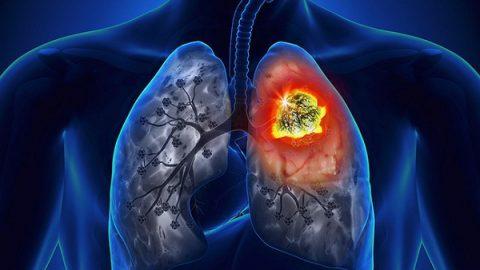 Những câu hỏi thường gặp về ung thư phổi