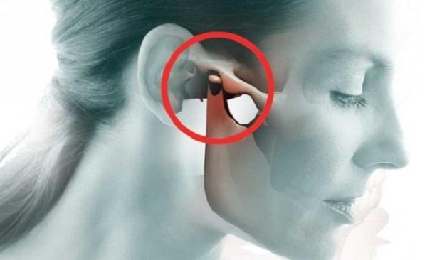 nguyên nhân gây viêm khớp thái dương hàm