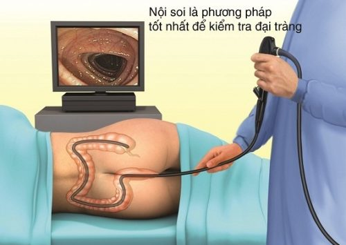 Nội soi là phương pháp kiểm tra đại tràng tốt nhất.