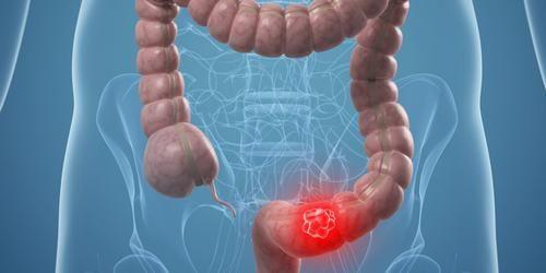 Đi ngoài ra máu và chấy nhầy cũng gặp trong những trường hợp mắc ung thư đại tràng