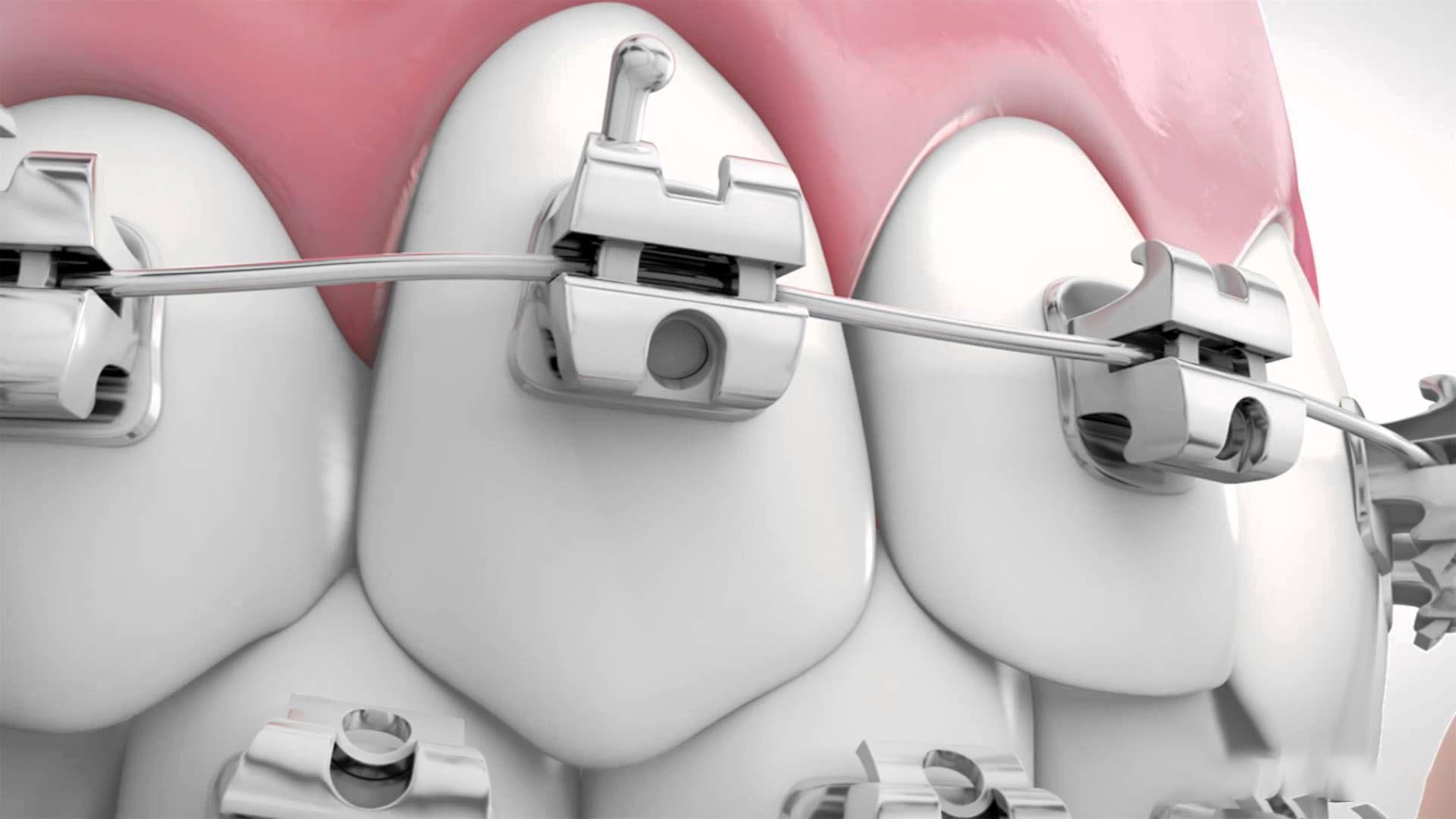 Niềng răng bằng mắc cài tự động có 2 ưu điểm là nắp cài được thiết kế tự động và không cần sử dụng đến dây thun