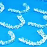 Tất tần tật về phương pháp niềng răng vô hình Zenyum