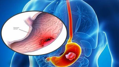 Nội soi dạ dày kết hợp với làm sinh thiết sẽ giúp phát hiện sớm ung thư dạ dày