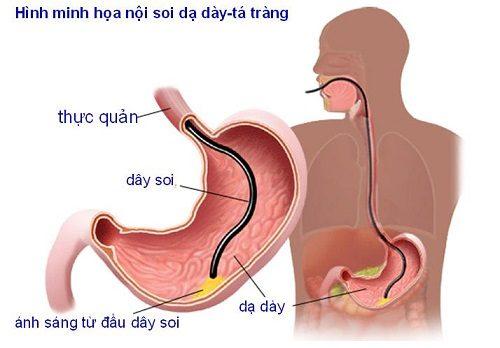 Nội soi dạ dày tá tràng là phương pháp thăm khám trực tiếp phần trên của ống tiêu hóa bao gồm thực quản, dạ dày và tá tràng