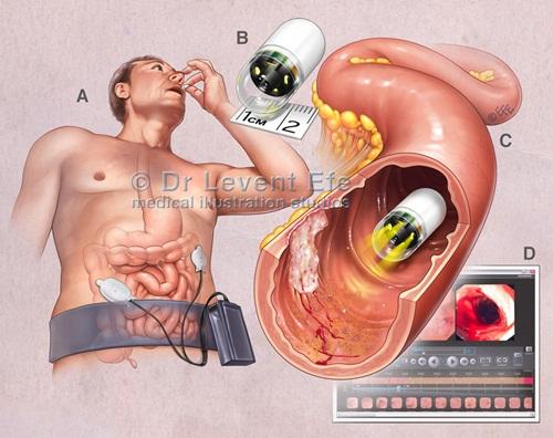 nội soi dạ dày bằng viên nang