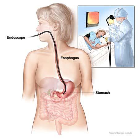 Hiện nay có nhiều phương pháp nội soi dạ dày đang được áp dụng giúp phát hiện sớm các bệnh lý ở dạ dày