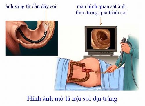 Nội soi đại tràng là một phương pháp giúp phát hiện những bất thường ở đại tràng
