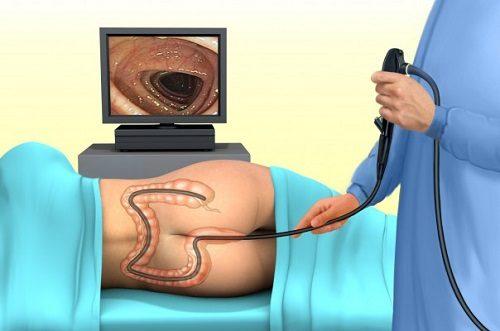 Nội soi đại tràng là phương pháp sử dụng một ống nội soi mềm luồn qua hậu môn vào đại tràng, giúp quan sát toàn bộ đại tràng.
