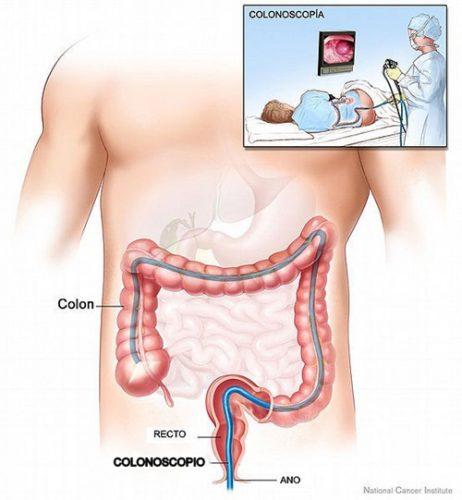 Nội soi gây mê thường được áp dụng với dạ dày, thực quản, tá tràng và đại trực tràng.