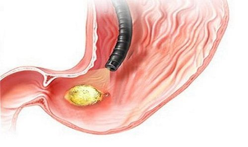 Nội soi dạ dày là một phương pháp thăm khám toàn bộ bên trong dạ dày giúp phát hiện sớm và chính xác các bệnh lý ở dạ dày.