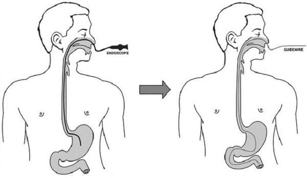 nội soi tiêu hóa bằng ống soi mềm đường mũi