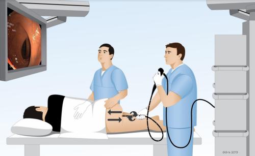 Nội soi trực tràng có đau không là quan tâm của rất nhiều người.