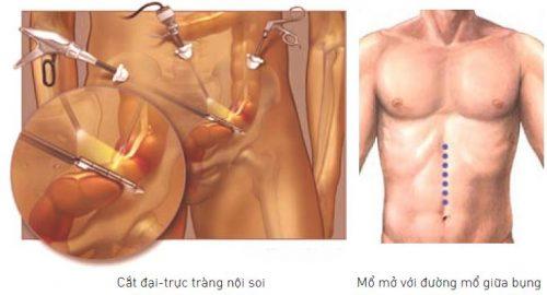 Những thông tin về các phương pháp phẫu thuật cắt trực tràng nêu trên chỉ mang tính chất tham khảo. Để biết chính xác Bệnh viện Thu Cúc áp dụng phương pháp nào vui lòng liên hệ 1900 558896 hoặc 0904 97 0909 để được tư vấn cụ thể.