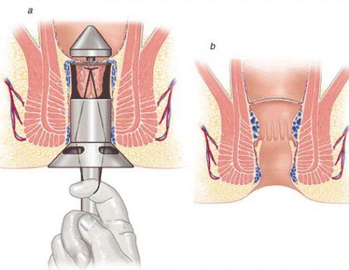 Cắt trĩ phương pháp Longo là giải pháp hiệu quả được nhiều người tin tưởng sử dụng điều trị bệnh