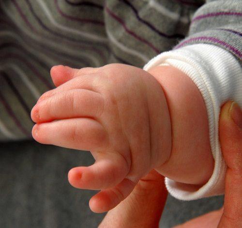 Ngón thừa ảnh hưởng nhiều đến thẩm mỹ và chức năng của bàn tay