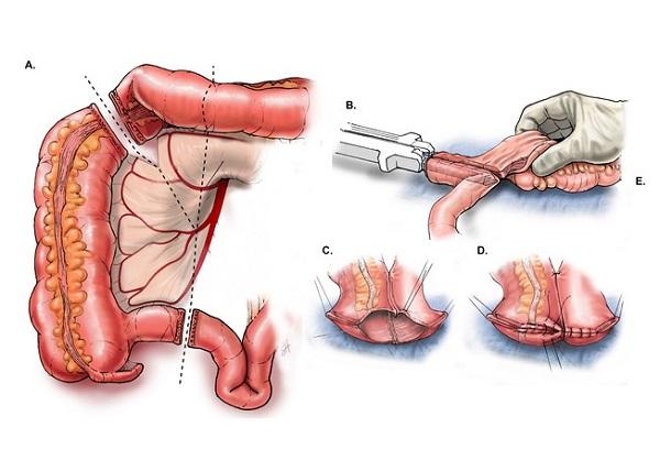 Phẫu thuật ung thư đại tràng là phương pháp lấy đi một phần hoặc toàn bộ đại tràng bị bệnh.