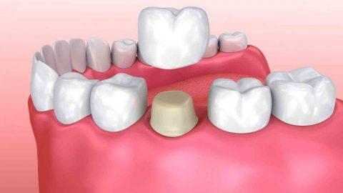 Chụp sứ răng hàm là phương pháp gì và được thực hiện thế nào?