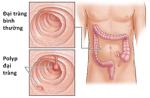 Polyp đại tràng là một khối phát triển bất thường trên bề mặt ruột già