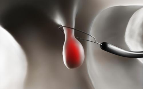Việc cắt polyp trực tràng thường được tiến hành trong quá trình nội soi.
